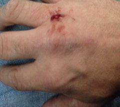 Johnson Bar battle wound!